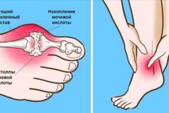 https://sovet-ok.ru/snizhenie-urovnya-mochevoj-kisloty-artrit-otstupit-v-odno-mgnovenie-esli-dobavit-v-svoj-racion/