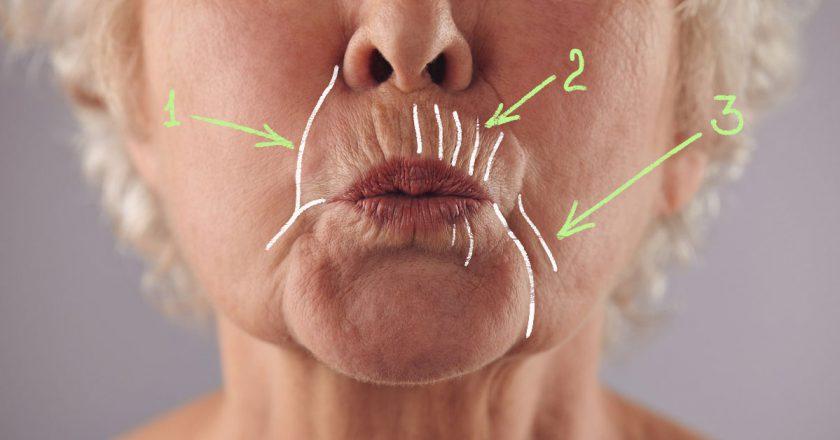 Как убрать глубокие морщины вокруг рта: 5 домашних масок, творящих чудеса с увядающей кожей. Изменения заметят все